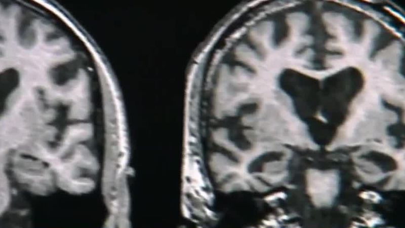 FDA approves new drug to treat Alzheimer's disease